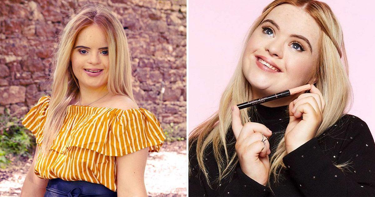 Фото Модель с синдромом Дауна — новое лицо косметического бренда
