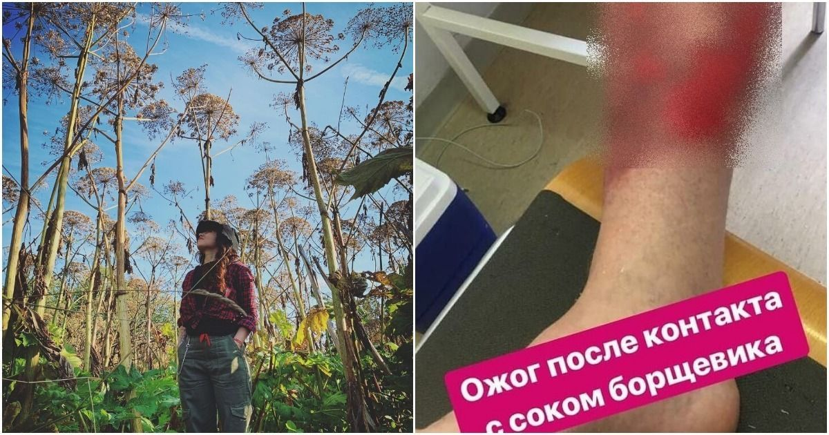 Фото Борщевик. Как выглядит и чем опасен? ФОТО ожогов и как их лечить