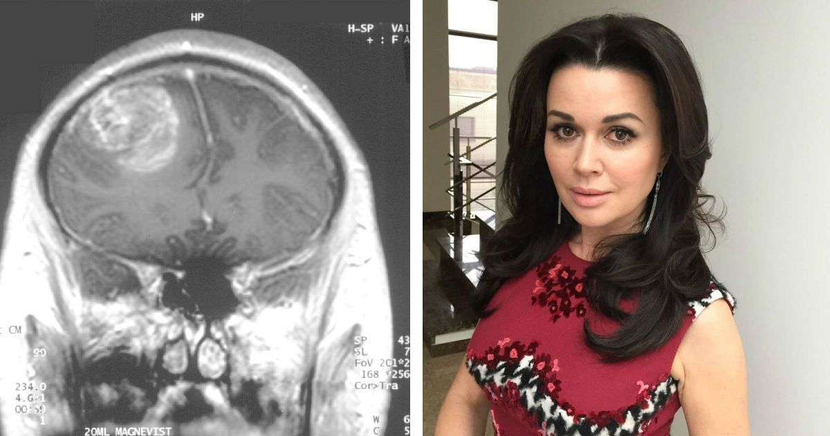 Фото Глиобластома головного мозга - что это? Болезнь Анастасии Заворотнюк