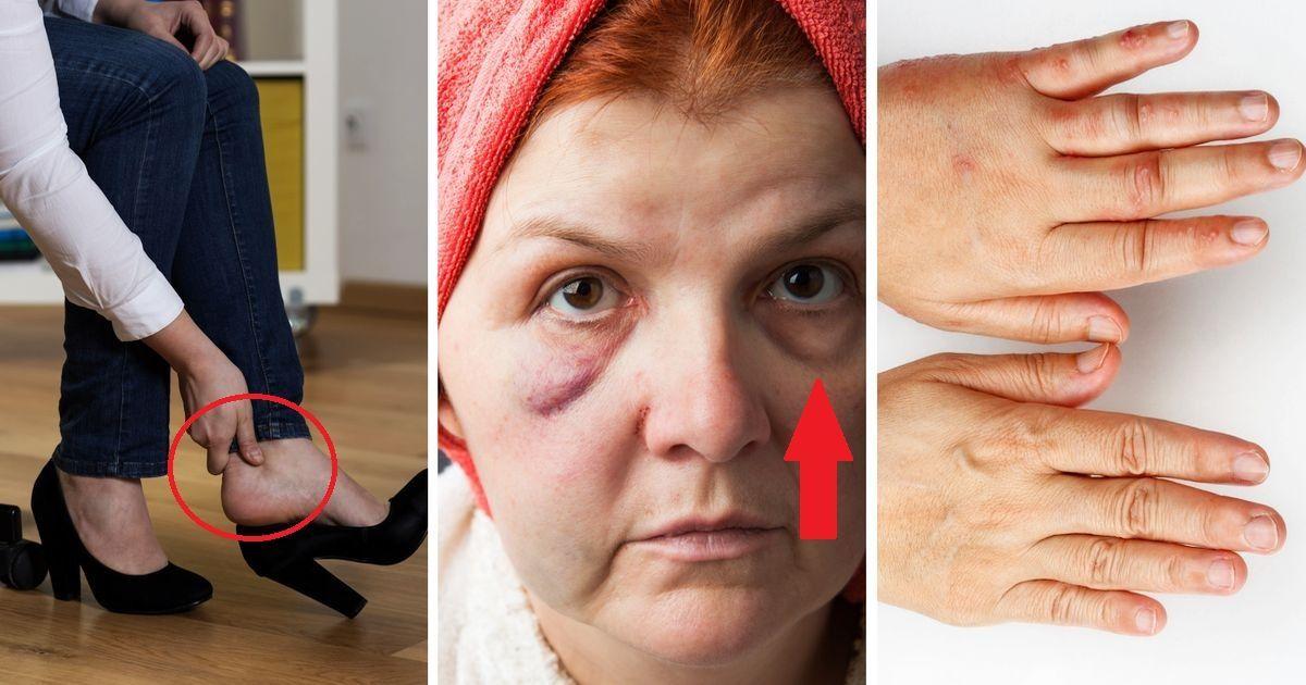 Фото Почему отекают глаза, ноги и пальцы? Симптомы, при которых пора к врачу
