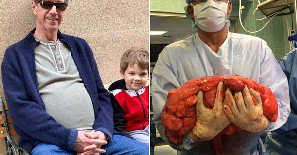 Фото Опухоль у мужчины врачи принимали за пивной живот