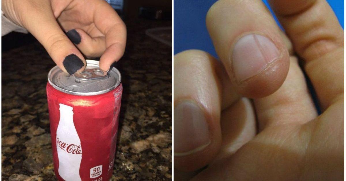 Фото Не делайте так! 8 безобидных привычек, которые уродуют ваши ногти