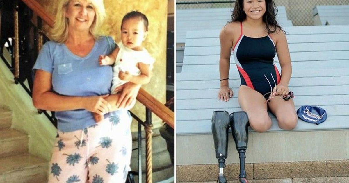 Фото Сильная духом: потерявшая обе ноги девочка смогла стать моделью
