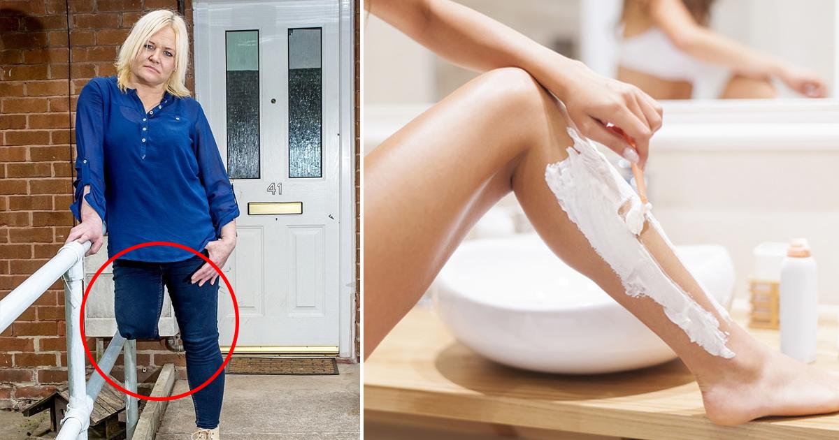 Фото После неудачного бритья женщине пришлось ампутировать ногу