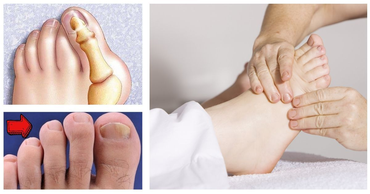 Фото О чем говорят ваши ноги? Объясняет доктор
