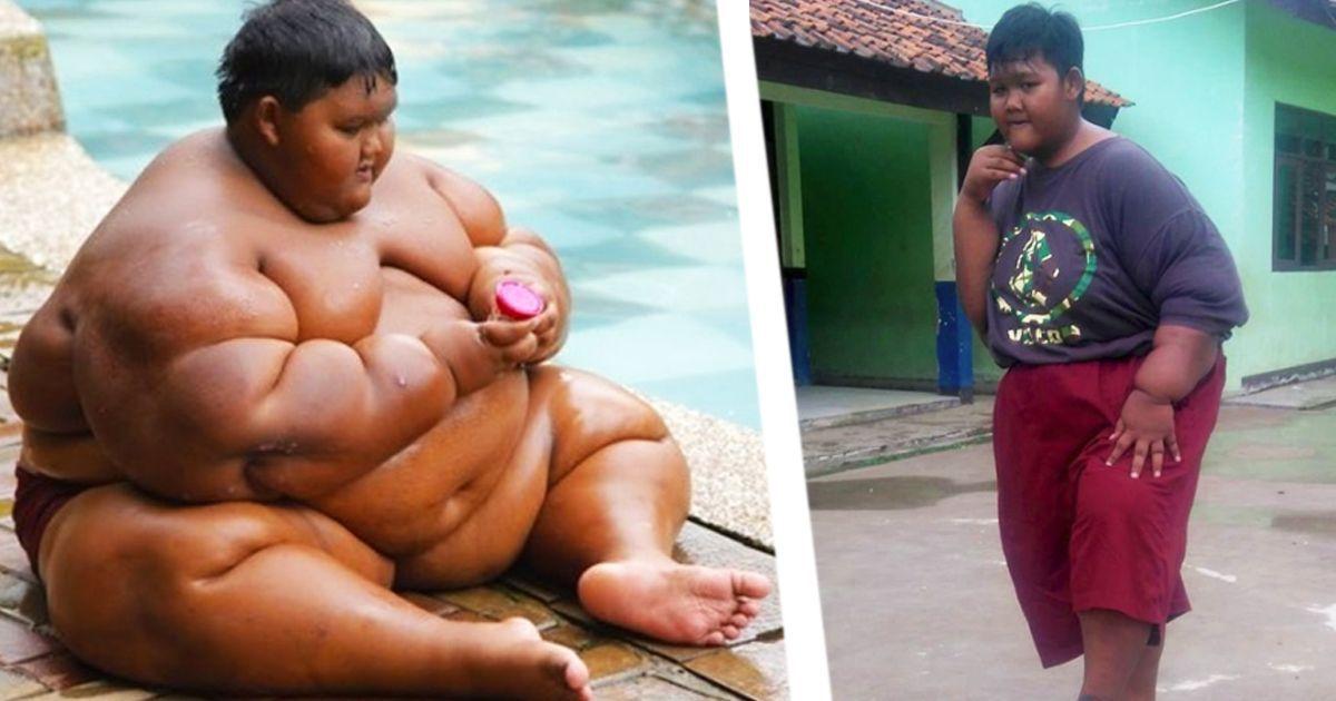 Фото Зверский аппетит усмирен! Самый толстый ребенок в мире похудел вдвое