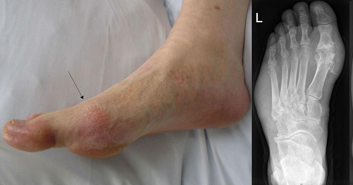 Фото Болезнь, терзавшая Началову. Что такое подагра, ее опасность и симптомы