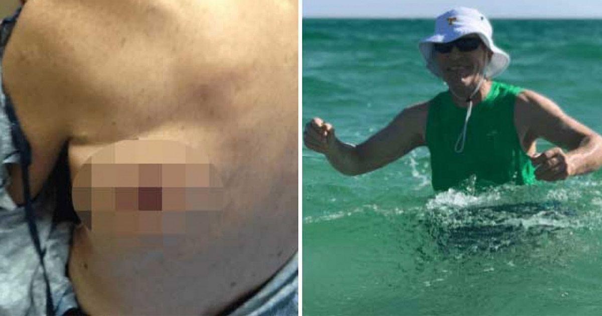 Фото Американец не пережил купания в море из-за бактерий