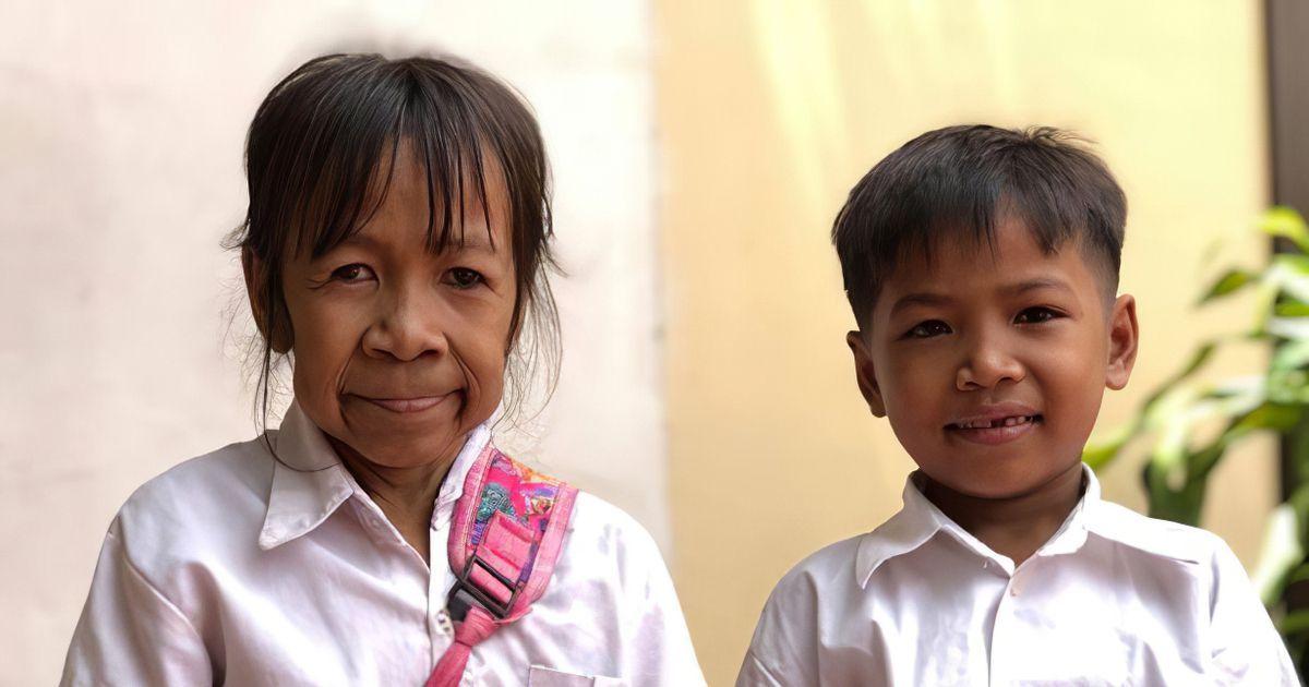 Фото Девочка с лицом старушки. Дети не дают ей прохода, а взрослые боятся