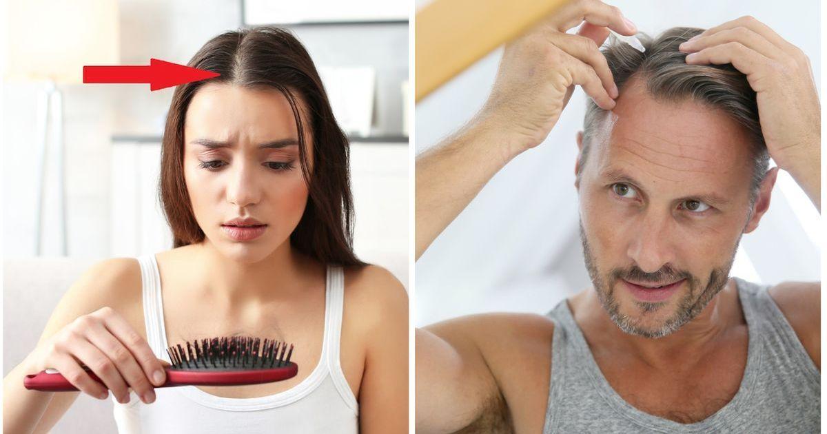 Фото Почему выпадают волосы. Средства для роста волос, лечение облысения