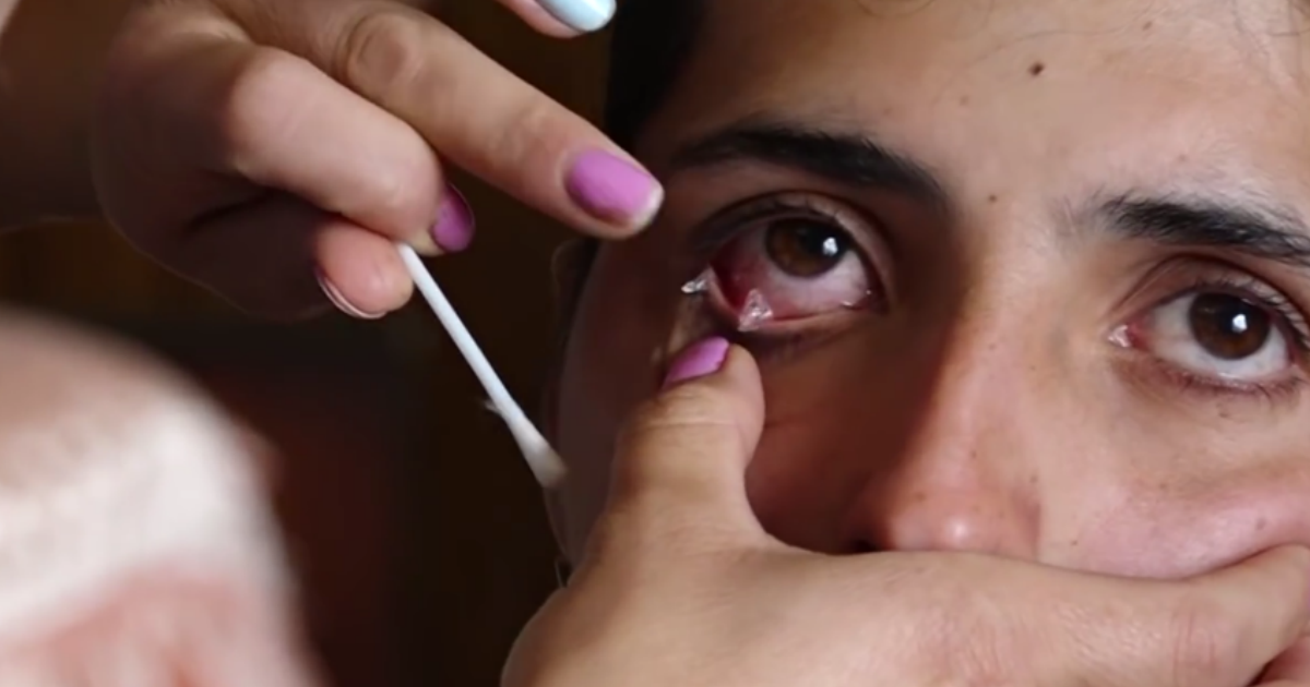 Фото Девушка из Армении плачет кристаллами вместо слез