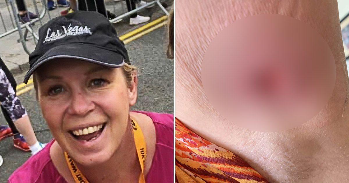 Фото Женщина осталась с дырой в руке после укуса ядовитого паука