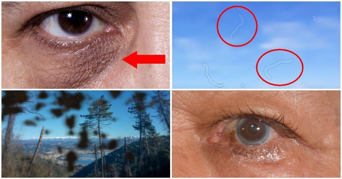 Фото Посмотри в глаза. 10 вещей, которые глаза говорят о вашем здоровье