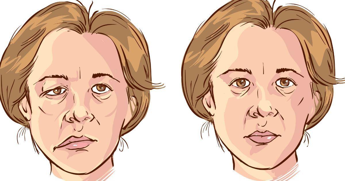 Фото Что такое парез и паралич? Причины, симптомы, лечение, вид до и после