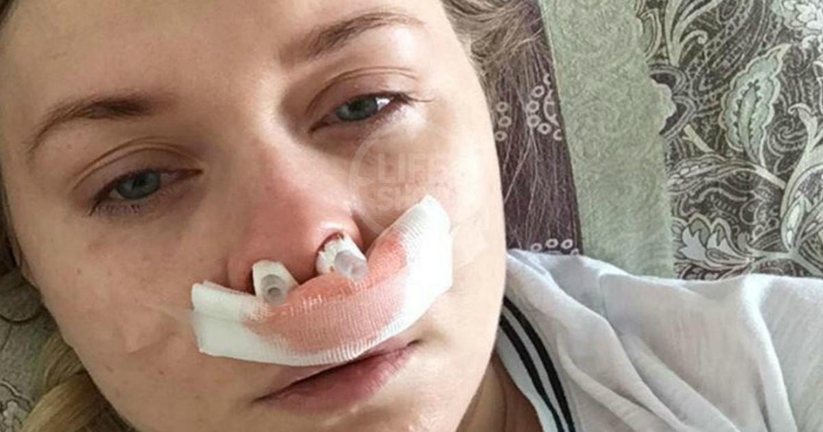 Фото У девушки удалили верхние зубы из-за забытого врачами в носу катетера