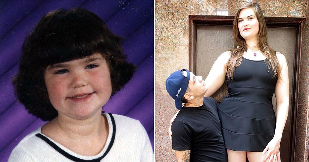 Фото Девочку дразнили из-за роста все детство, а она выросла и стала популярной
