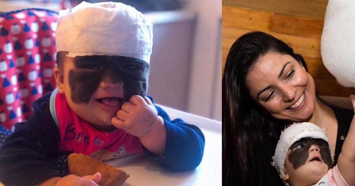 Фото Мама девочки из США с родимым пятном на все лицо обратилась к россиянам