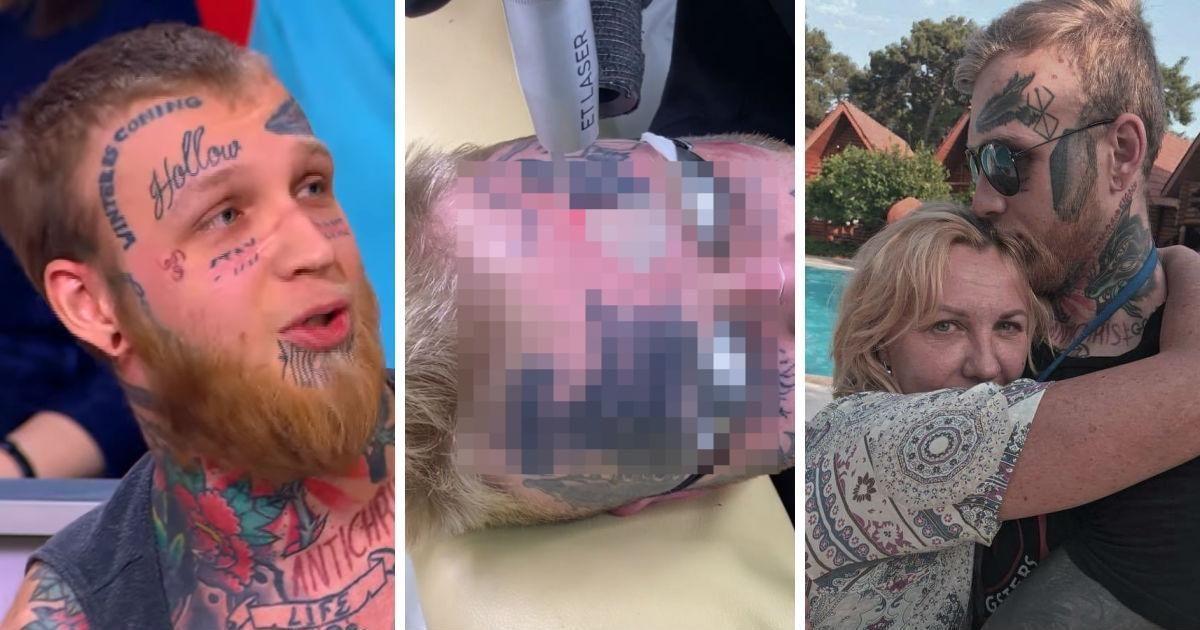 Фото Татуированный сын Елены Яковлевой начал сводить наколки с лица