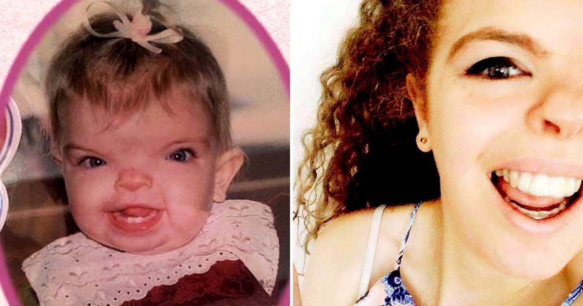 Фото Девочка родилась с редким синдромом. Как она выглядит после всех операций?