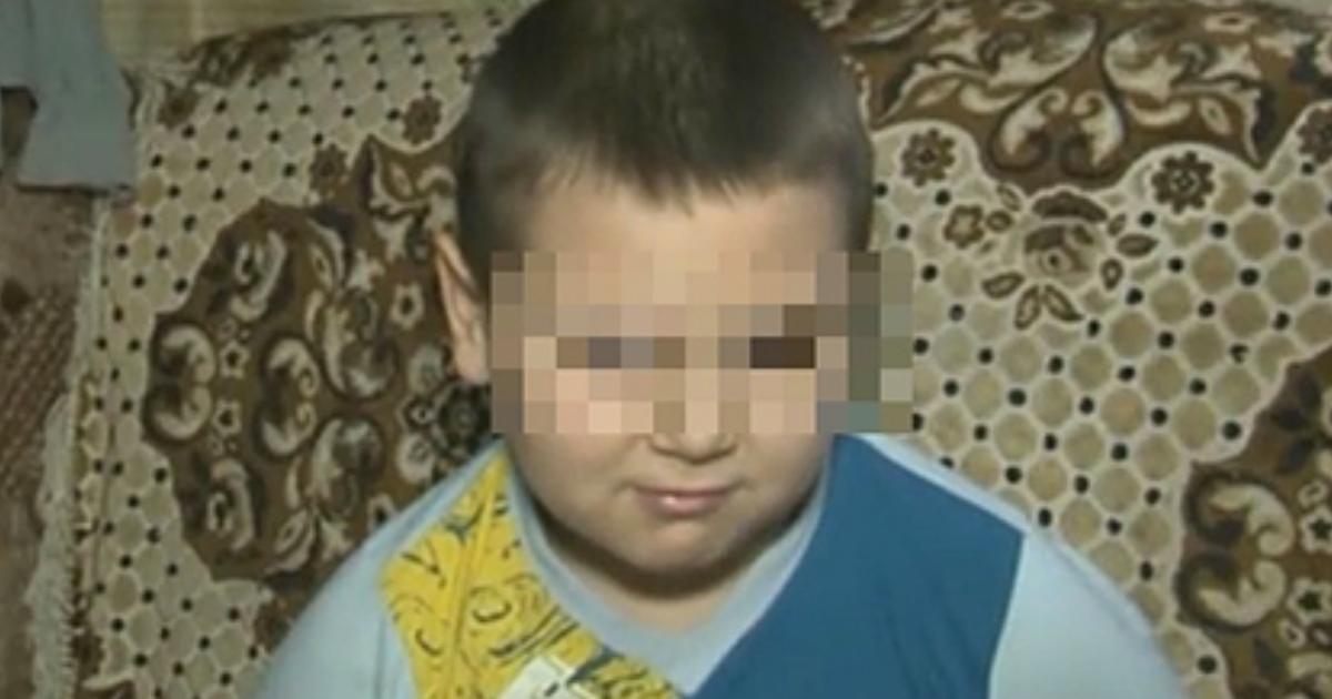 Фото Власти отказали в помощи 9-летнему мальчику без глаза в Ростове-на-Дону