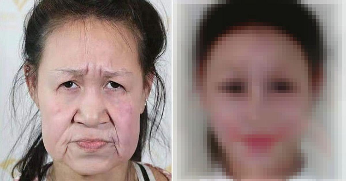 Фото Новый облик. Китайскую девочку с лицом старушки спасла операция