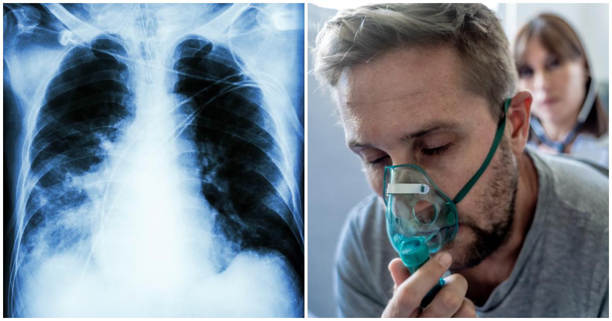 Фото Пневмония: симптомы и признаки воспаления легких у детей и взрослых, лечение