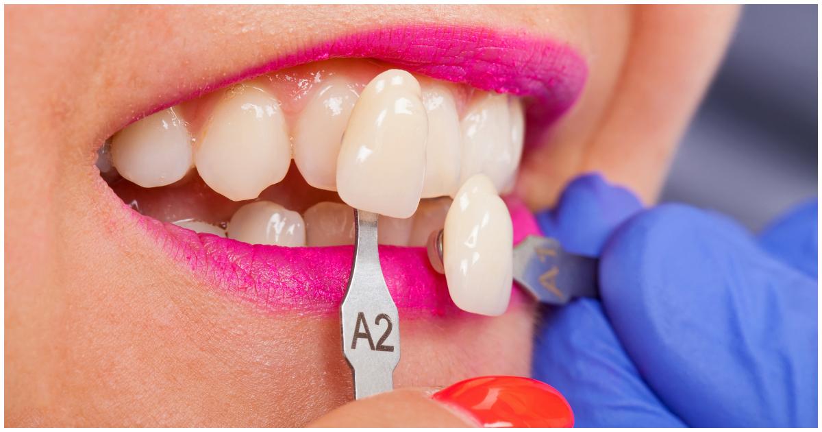Фото Виниры для зубов - что это и зачем? Сколько стоят виниры и чем отличаются