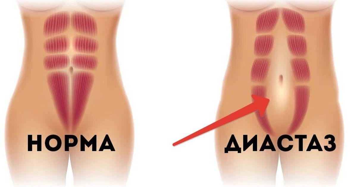 Фото Диастаз: белая линия живота и диастаз прямых мышц после родов