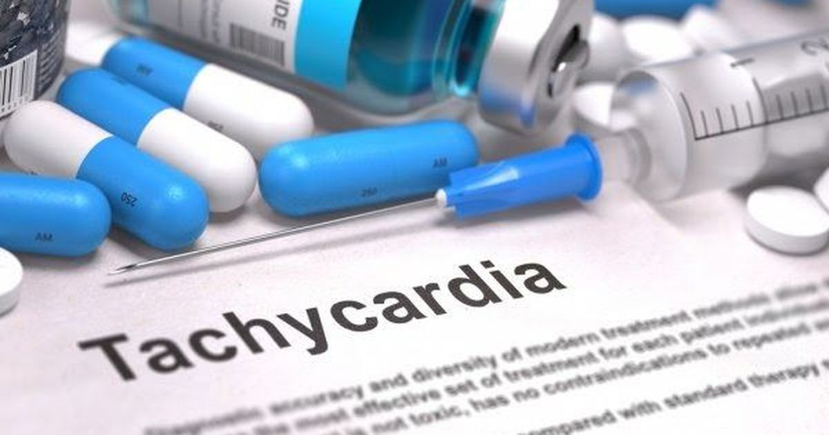 Фото Тахикардия: симптомы и лечение, синусовая и пароксизмальная тахикардия