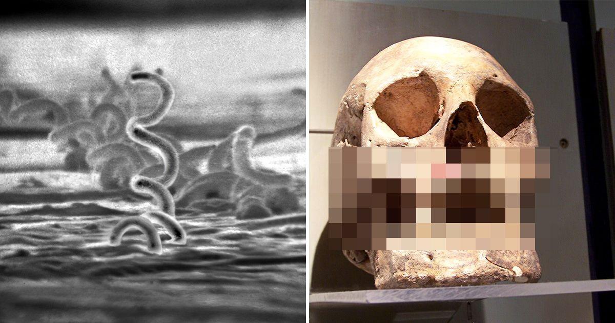 Фото Топ-5 ужасных заболеваний, которые человечество еще не победило