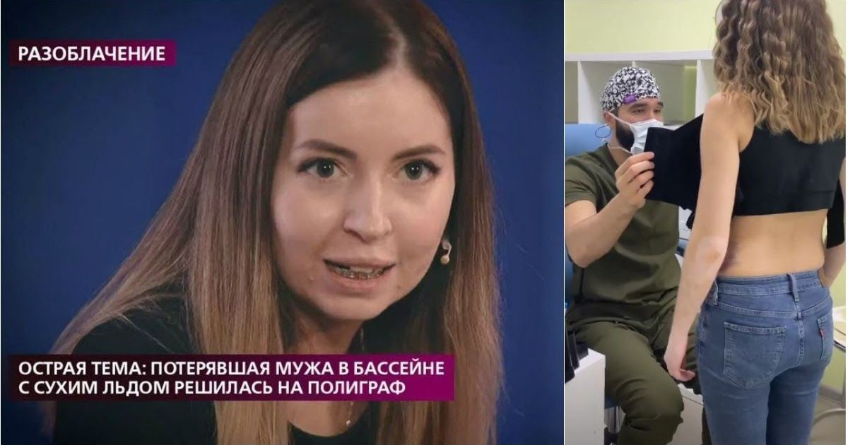Фото Новая жизнь: Диденко показала результаты пластической операции