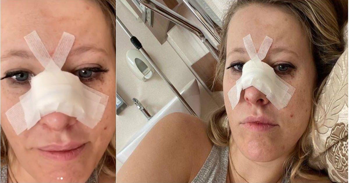 Фото Собчак госпитализирована с переломом носа