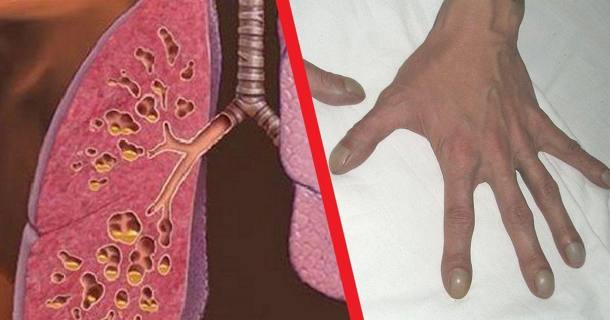 Фото Фиброз легких: чем опасен пневмофиброз, грозящий после коронавируса