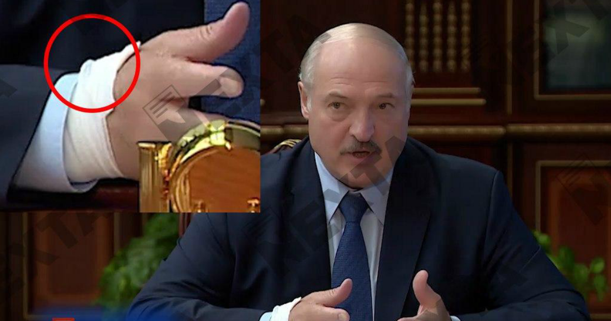 Фото «Катетер у Лукашенко?»: СМИ обеспокоились состоянием президента Белоруссии
