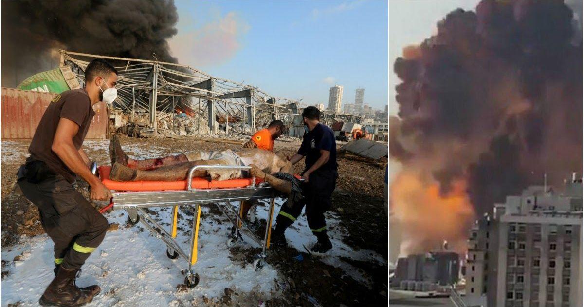 Фото Катастрофа мирового масштаба: тысячи раненых в больницах Бейрута после взрыва