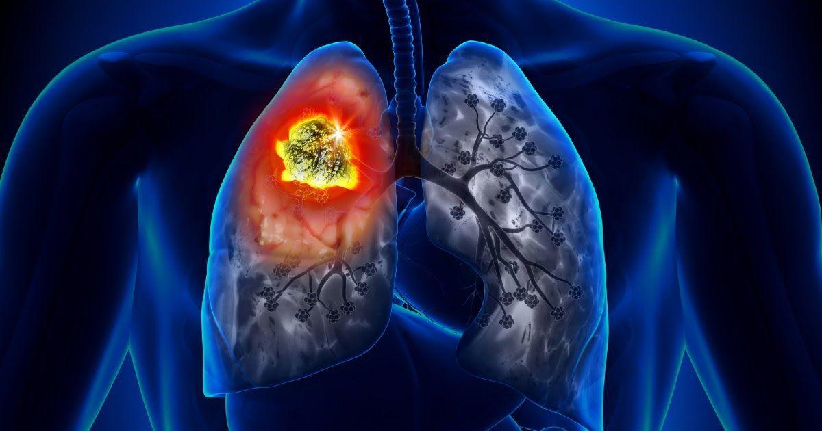 Фото Рак легкого: симптомы, стадии, лечение. Причины рака легких
