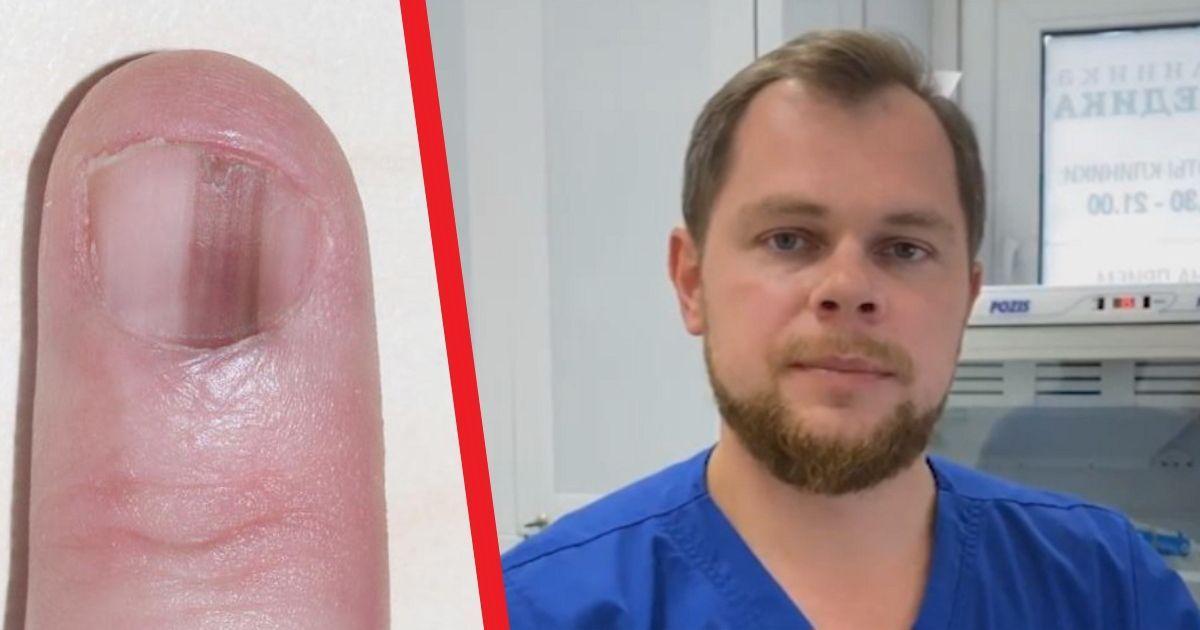 Фото Онколог Мяснянкин назвал признаки рака кожи