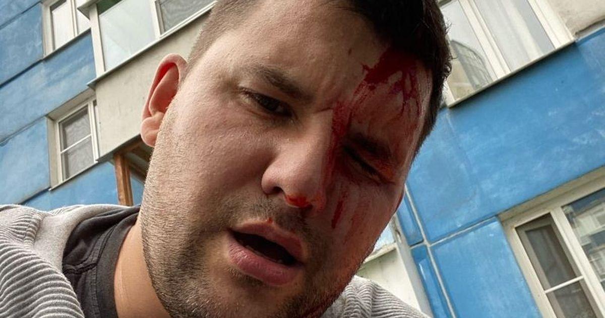 Фото В Петербурге избили борца с незаконными ларьками
