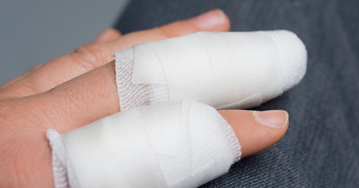 Фото Жительница Пензенской области лишилась пальца из-за неприличного жеста