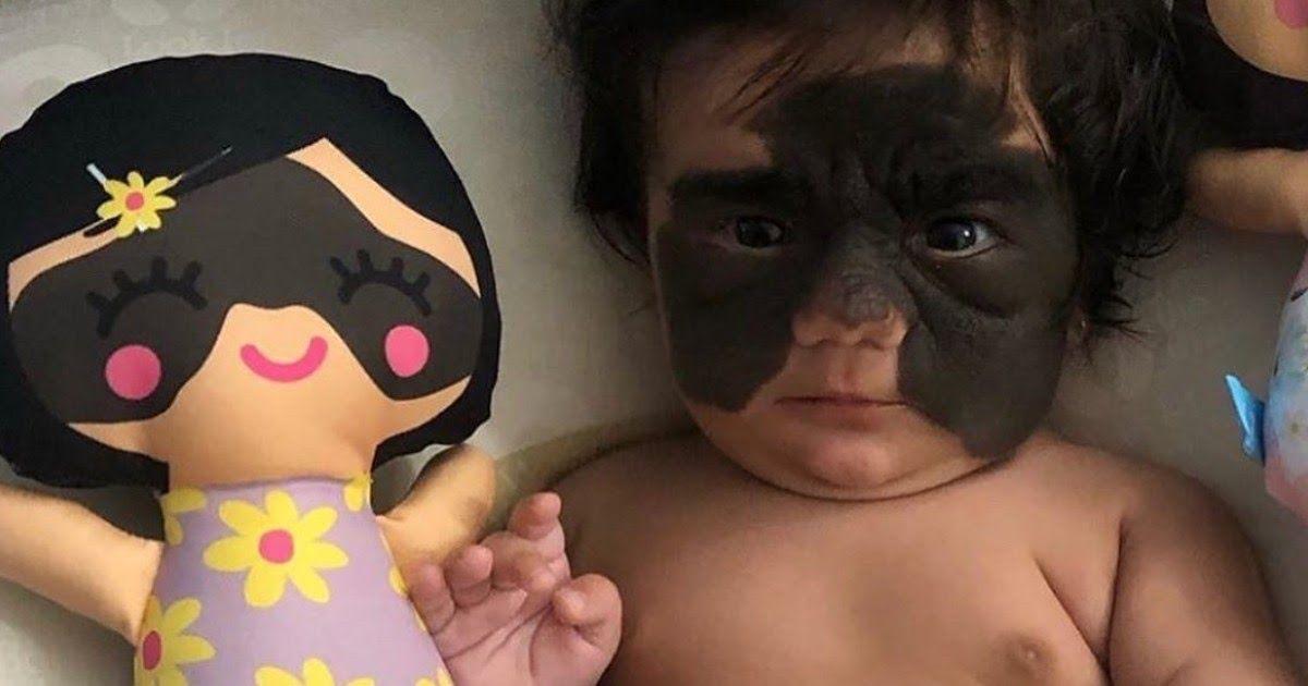 Фото Российские врачи удалили «пятно Бэтмена» с лица американской девочки